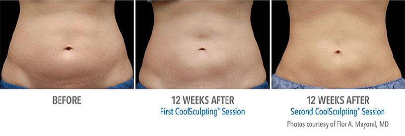腹部の症例写真