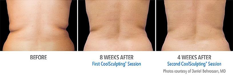 側腹部の症例写真