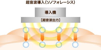 超音波導入(ソノフォレーシス)について